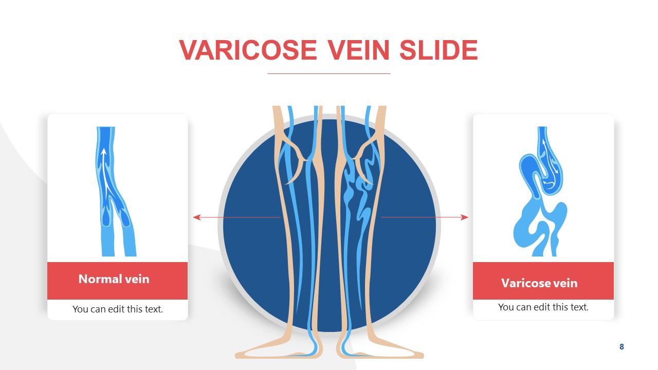 Presentation of Veins Disease Varicose